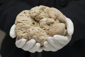 Dr. Leonard White wearing white gloves supporting a human brain during a Medical Neuroscience presentation. The brain shows the caudal view.